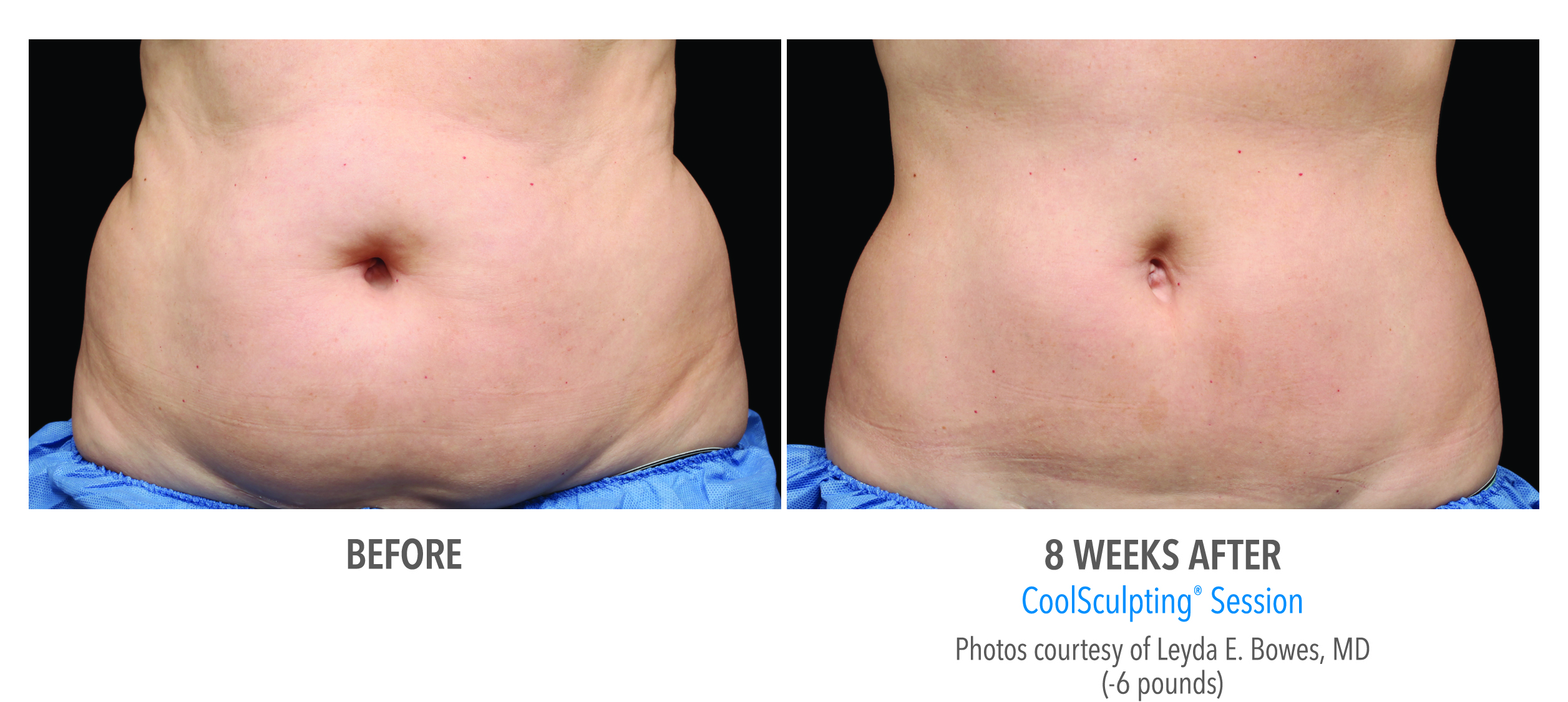 When you've done all the workout & dieting you can do for stubborn fat, CoolSculpting at Belle Vie is your solution.