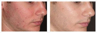 The Smoothbeam 1450nm diode laser is the first device specifically designed to effectively target the root cause of acne.