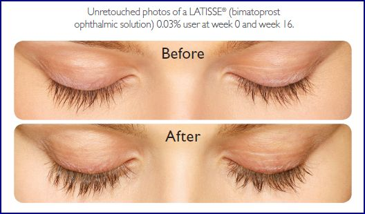 Latisse, available through Belle Vie, is a medical topical treatment that grows eyelashes longer, darker and fuller.