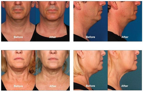 Kybella is an injectable with great results for clients who want to reduce their double chin & improve their profile.