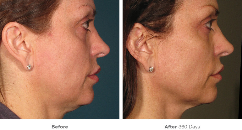 Ultherapy boosts the level of collagen in your skin, the key factor in maintaining elasticity and youthful-appearance.