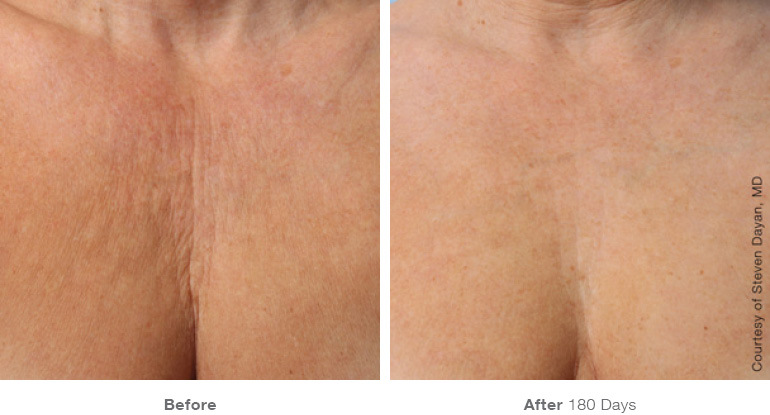 Ultherapy penetrates into the deep layers of skin, going into the lower layers of muscles that even lasers cannot reach.